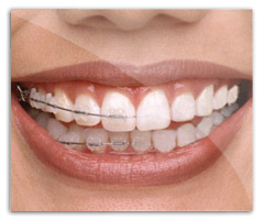 braces-fix in photoshop